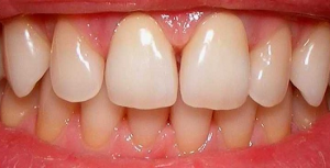 Full ceramic crowns - after