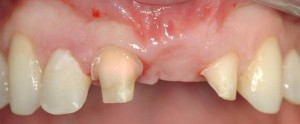 Zirconium bridge - before