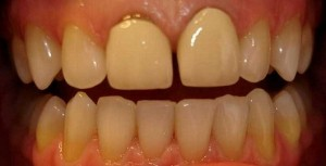 Full ceramic crowns - before