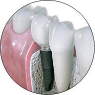 Centru stomatologic dr. Andrea Chinsoiu - Implantologie